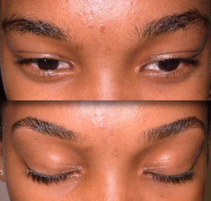 eyebrow and eyelash enhancement